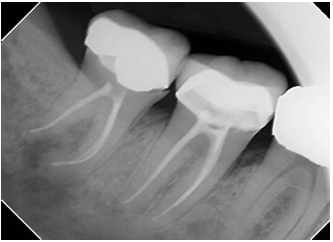Lower Right Wisdom Tooth X-Ray - Root Canal