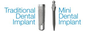 Traditional vs. Mini Dental Implant Comparison