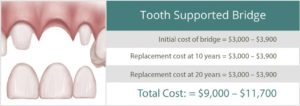 Cost Comparison for a Tooth Supported Bridge