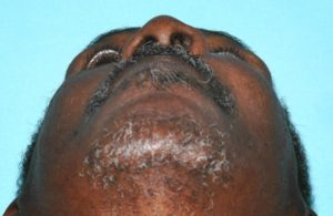 Upshot of Patient's Jaw