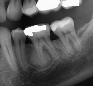 X-Ray of Benign Lesion in Root of Tooth