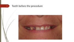 All-on-4 Presentation - Before Procedure - Slide 2
