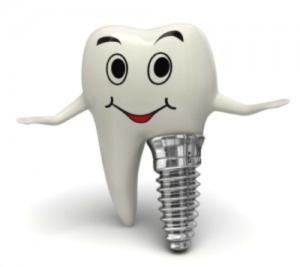 Dental Implant Caricature - D