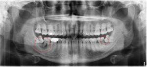 Full X-Ray of Two Impacted Wisdom Teeth - Bottom Row