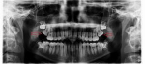 Full X-Ray of Two Impacted Wisdom Teeth - Top Row