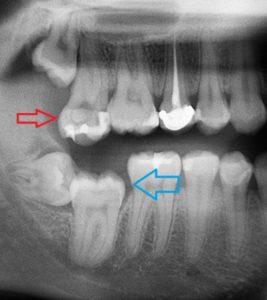 X-Ray of Impacted Wisdom Blocking Molar