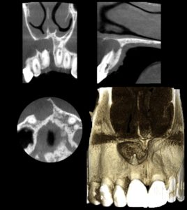 Radiograph of Tooth with a Large Periapical Lesion - Duplicate