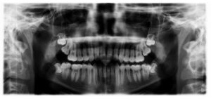 Retained Wisdom Teeth X-Ray