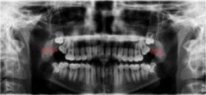 Impacted Teeth X-Ray - Upper Row Wisdom Teeth