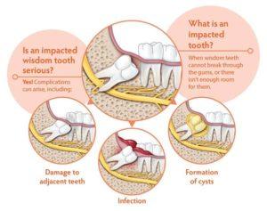 Impacted Wisdom Teeth Diagram