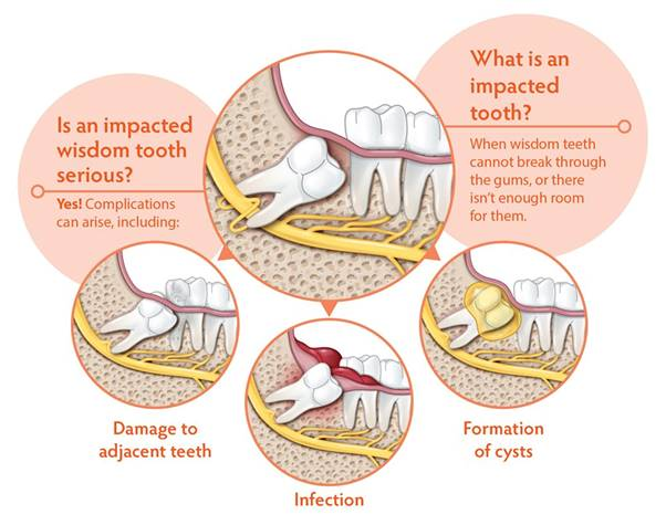 Impacted Wisdom Teeth Diagram