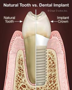 Drawing of Natural Tooth vs. Dental Implant