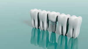 How do you clean an implant crown