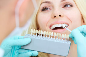 What is the All-on-4 dental procedure