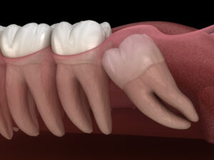 Are top or bottom teeth harder to remove