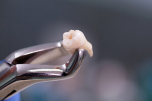 What is the most difficult tooth to extract